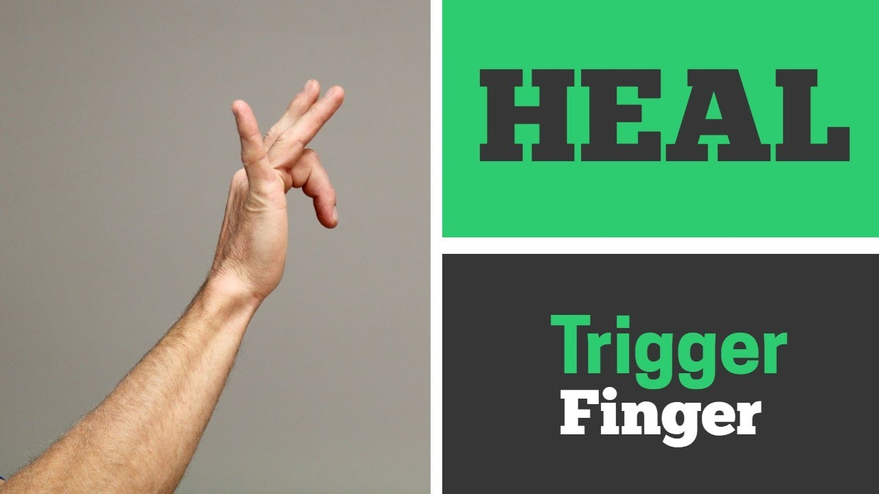 How to Heal Trigger Finger with 4 Exercises That Work! (Real Patient)